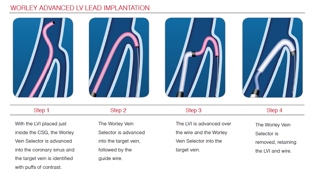 Worley™ Advanced Lateral Vein Introducer - Merit Medical