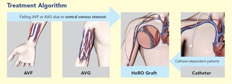 HeRO Graft - Hemodialysis Reliable Outflow
