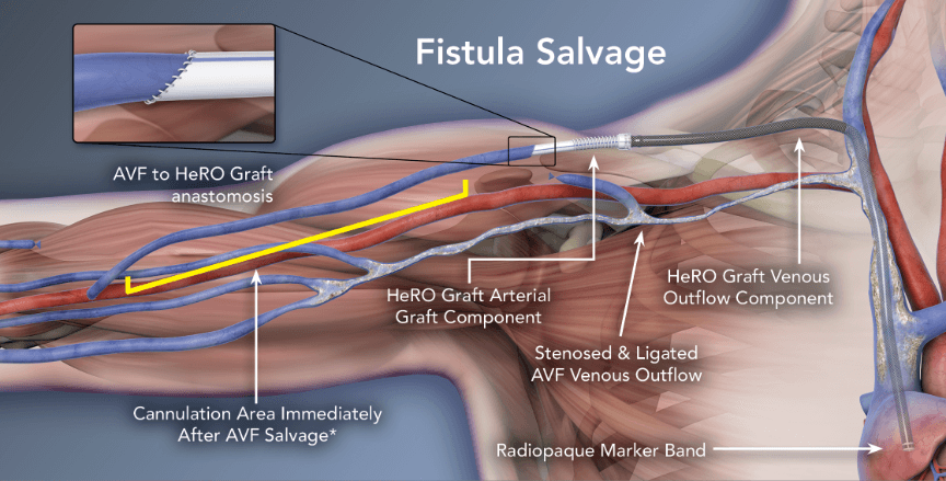 Fistula Salvage - HeRO Graft