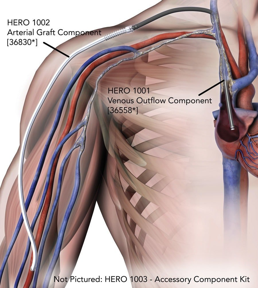 What is HeRO Graft? - Merit Medical