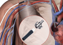 HeRO Graft - Hemodialysis Reliable Outflow