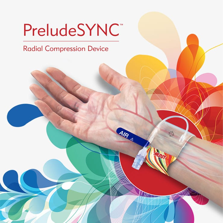 PreludeSYNC(TM) - Radial Compression Device