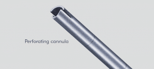 Huntington Perforating cannula
