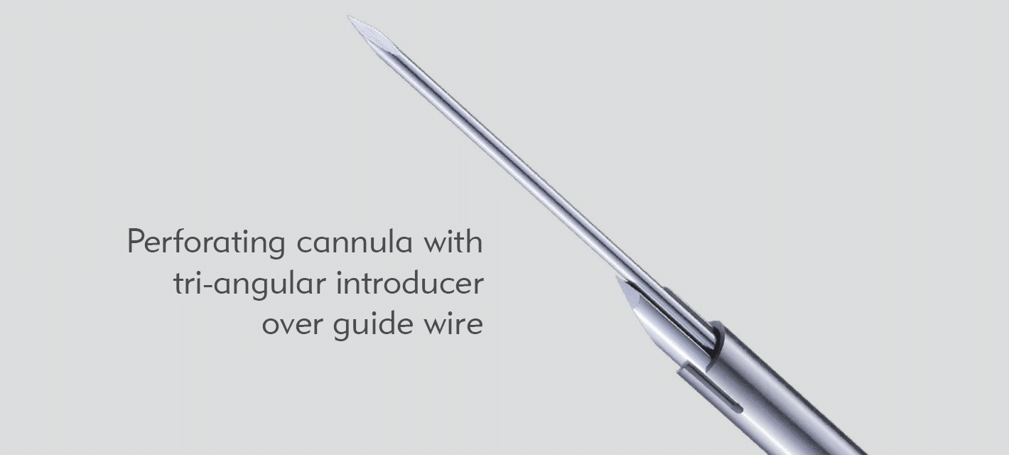 Huntington Perforating cannula with tri-angular introducer over guide wire