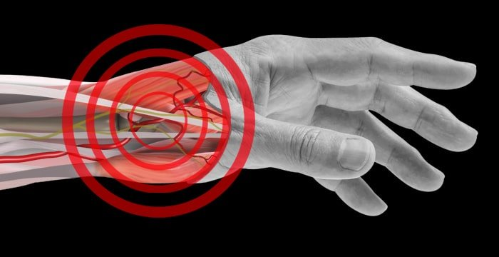 Cut away image of wrist with bullseye on distal radial artery