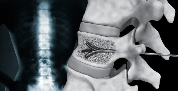 Close up of vertebral augmentation tool for fractures and tumor ablation