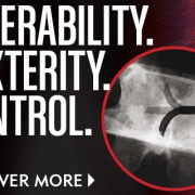 StabiliT MX - Steerability, Dexterity, Control - Merit Medical - Vertebral Augmentation