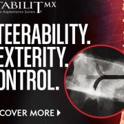 StabiliT MX - Steerability, Dexterity, Control - Vertebral Augmenation - Merit Medical