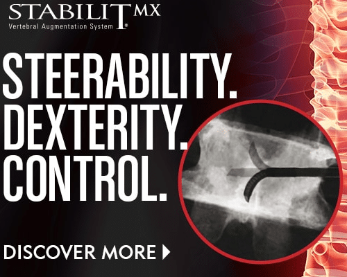 StabiliT MX - Steerability, Dexterity, Control - Vertebral Augmenation - Merit Medical