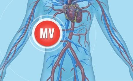 Merit Vascular Division