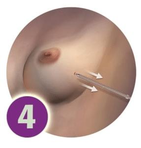 SAVI Brachy - Step 4 - Removal