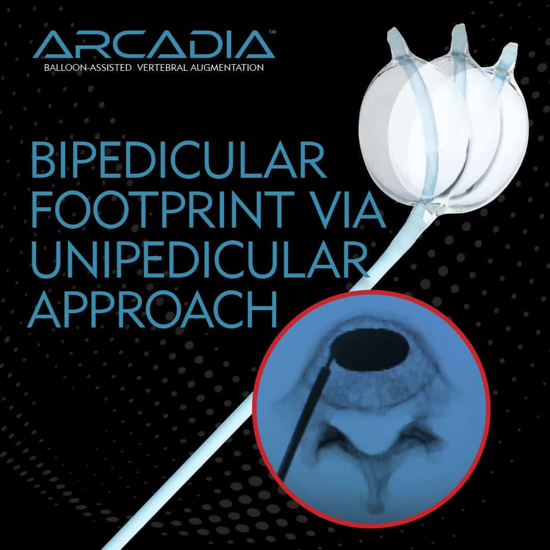 Arcadia - Bipedicular Footprint via Unipedicular Access - Merit Medical