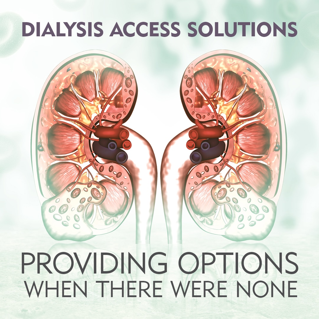 Dialysis Access - Providing Options When There Were None Before - Merit Medical