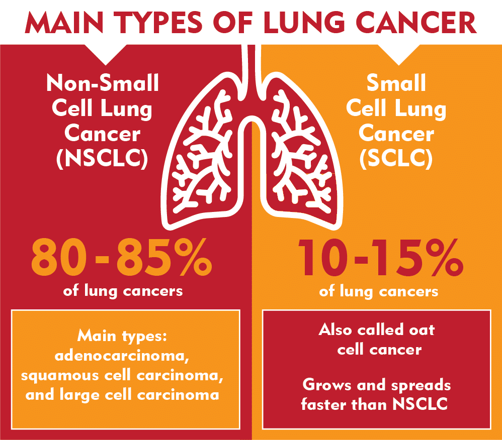 Main Types of Lung Cancer - Non-Small Cell and Small Cell Lung Cancer - Merit Medical
