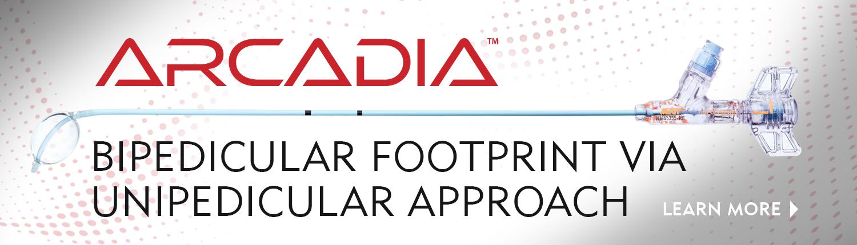 Arcadia Steerable Ballon - Bipedicular Footprint via a Unipedicular Approach