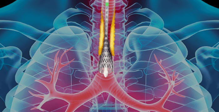 Pulmonary Stricture Management - Merit Medical Solutions