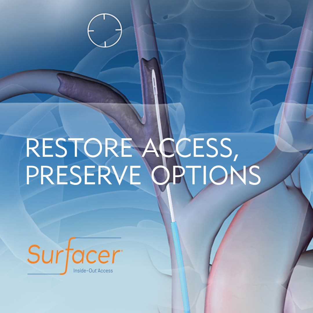 Surfacer System Allows You to Restore Access and Preserve Your Options