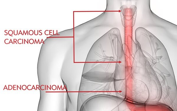 Types of Esophageal Cancer and Where They Occur