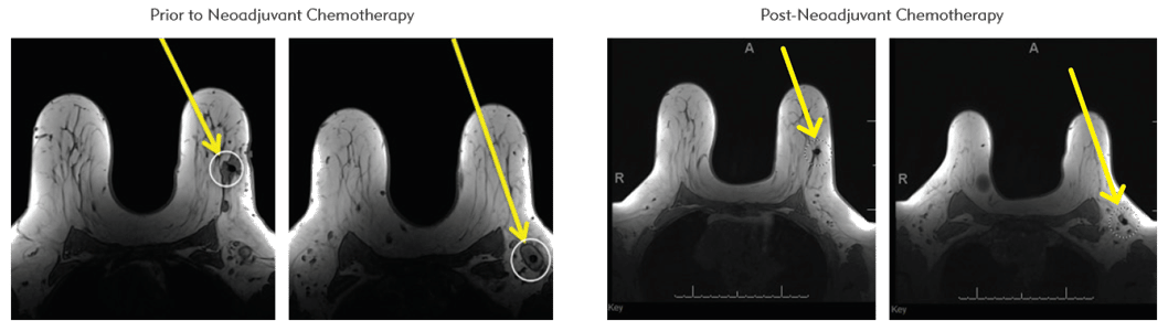 Allows surgeons to more easily identify previously biopsied nodes, even after neoadjuvant chemotherapy
