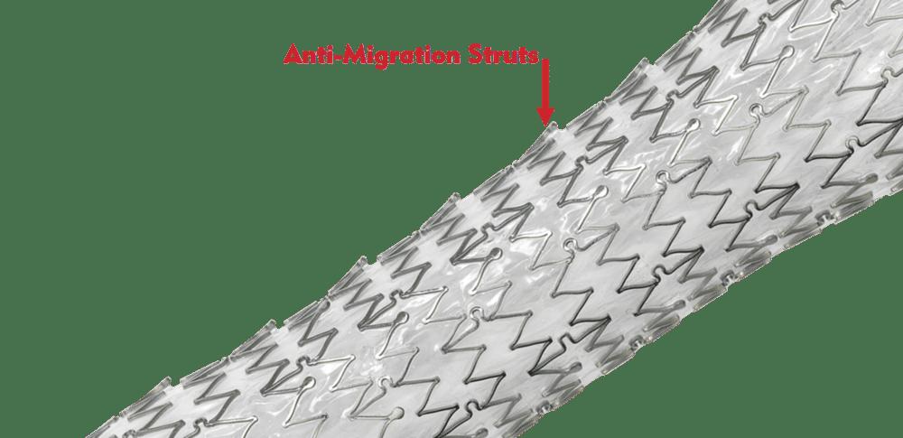 EndoMAXX - Designed with Anti-Migration Struts