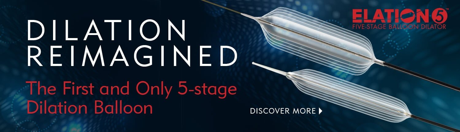 1ST and Only 5-stage dilation balloon - Dilation Reimagined