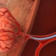Uterine Fibroid Embolization - Embosphere Microspheres