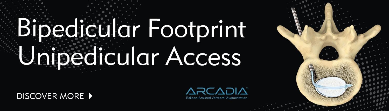 Bipedicular Footprint, Unipedicular Access for Vertebral Compression Fractures