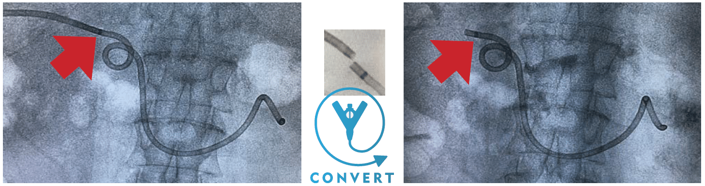 ReSolve ConvertX - Stent to Drain Conversion