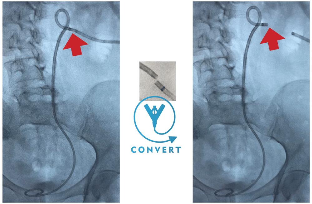 ConvertX Ureteral Stent System - Drain to Stent in 30 Seconds