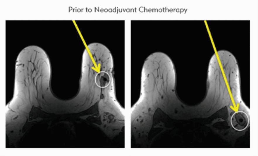 prior to neoadjuvant chemotherapy