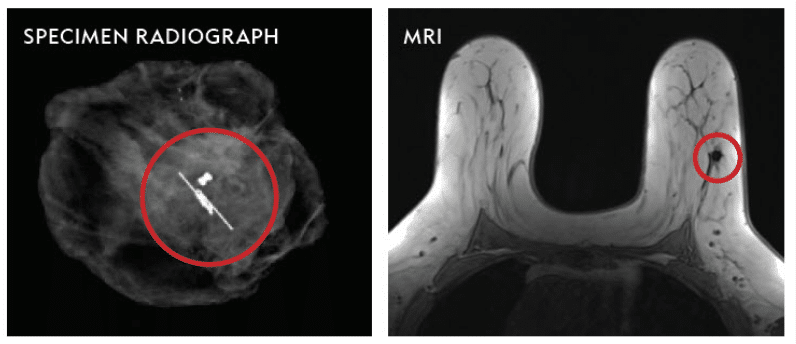 Images of a specimen radiograph and MRI