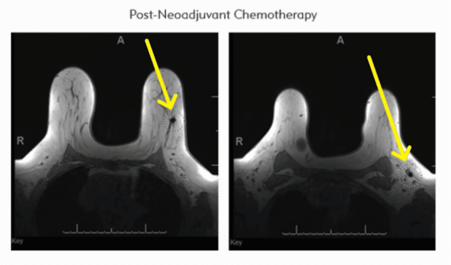post-neoadjuvant chemotherapy