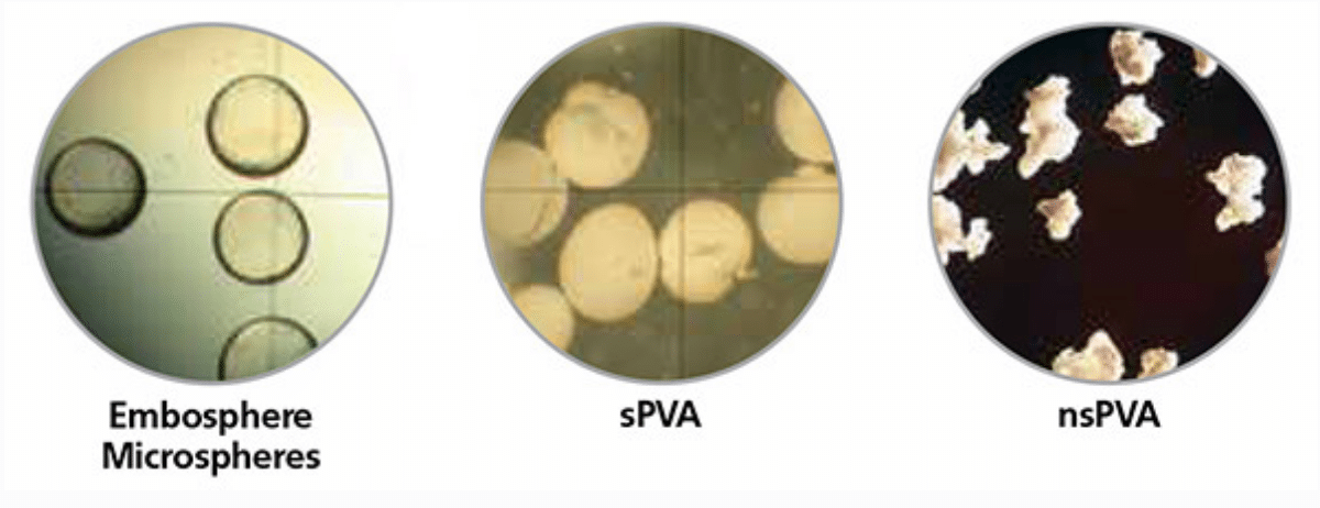 Embosphere Microspheres show clearer cross-section than sPVA or nsPVA