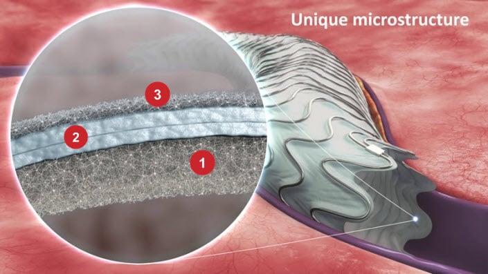 3 key elements of the Merit WRAPSODY Endoprosthesis