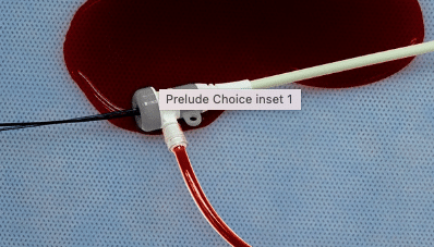 leakage when not using Prelude Choice Hemostasis Valve